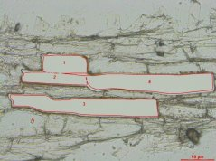 Section after microdissection.