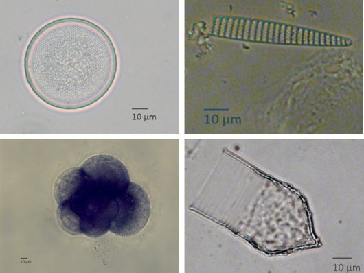 Organisms found in the stomach of young krill. Top: a centric and a pennate diatom (algae). Bottom: a foraminifer and the shell of a tintinnid, which both are unicellular organisms.
