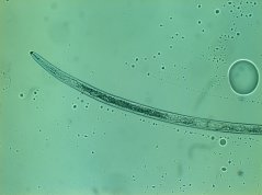 Rotylenchus robustus: oesophagus