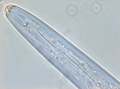 Hirschmanniella gracilis: anterior body part with lip region and well developed stylet and median bulb