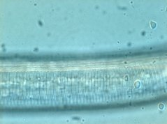 Rotylenchus robustus: cuticle, lateral field partial