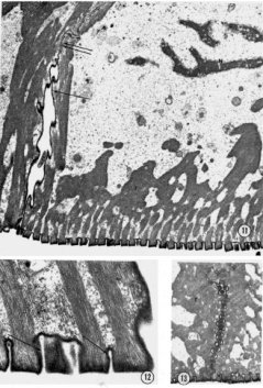 Electron microscope image of a stained section of a toe pad of H. cinera (Ernst, 1973).
