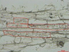 12 µm section of a mycorrhized Medicago root with several cells containing arbuscules marked for microdissection.
